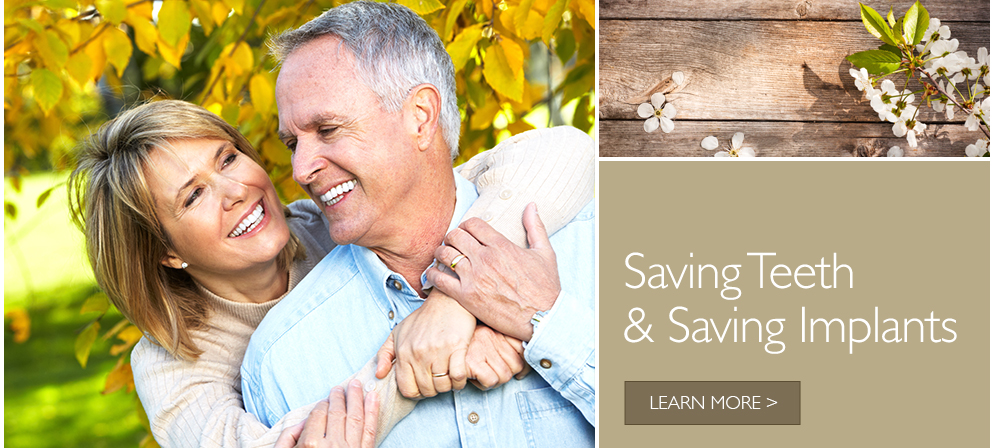 Saving Teeth & Saving Implants
